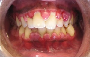 An example of periodontal disease